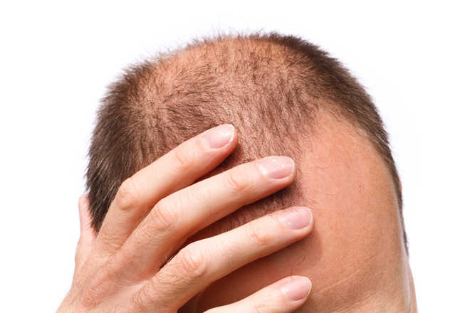 Over 200 genetic markers linked to male baldness identified