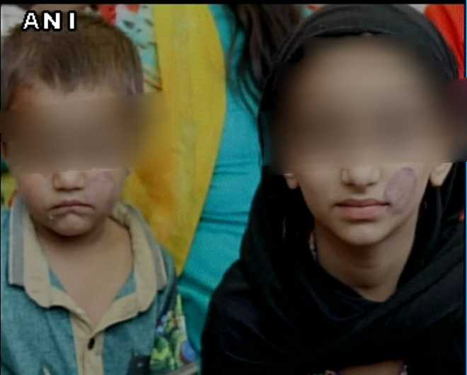 Bhopal jail staff stamp seal on minors' faces who came to see father