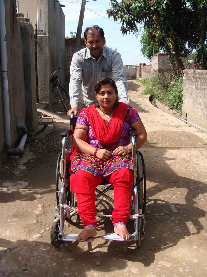 Victims of landmine blasts, shelling left scarred