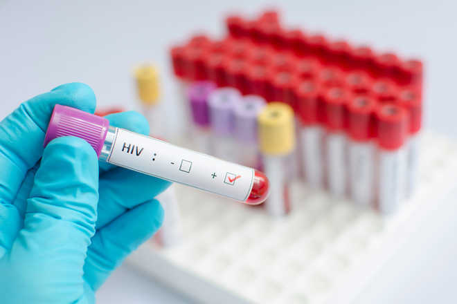 'New method may lead to faster diagnosis of HIV, syphilis'