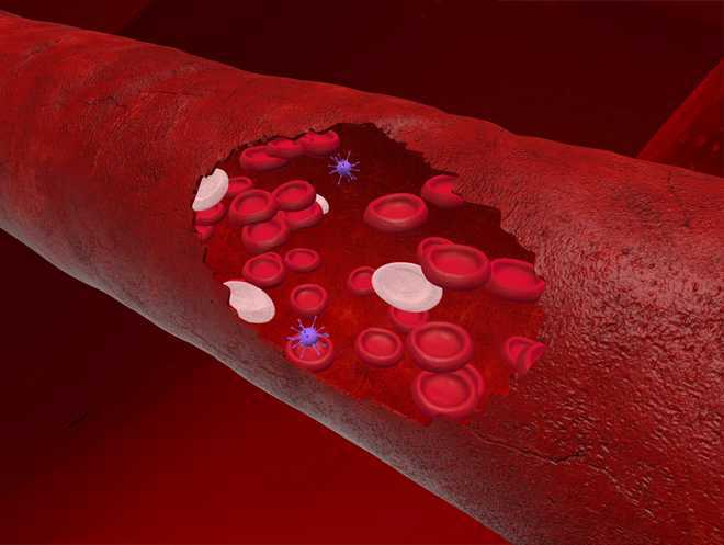 Novel vaccine may reduce post-stroke blood clot risk