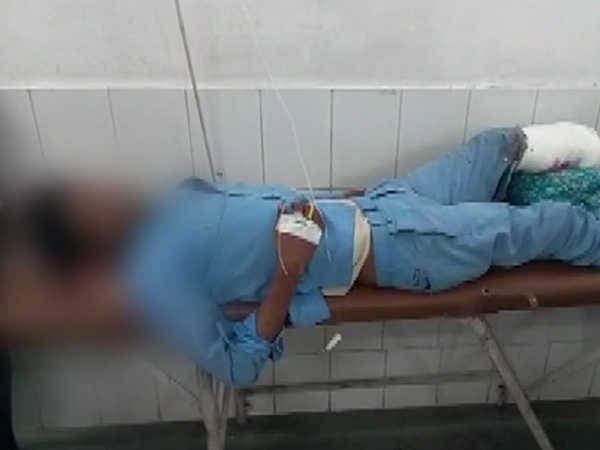 man s amputated leg put under his head as pillow in jhansi hospital