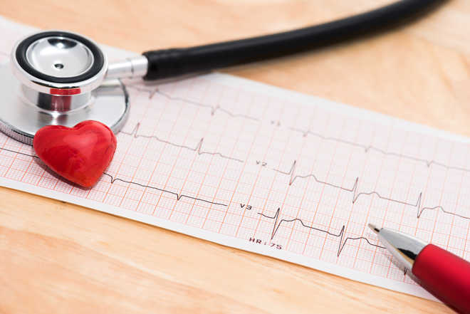Scientists identify 36 new genes implicated in cardiac disease