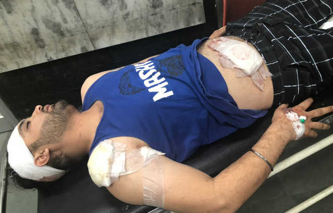 Ludhiana man attacked with beer bottle