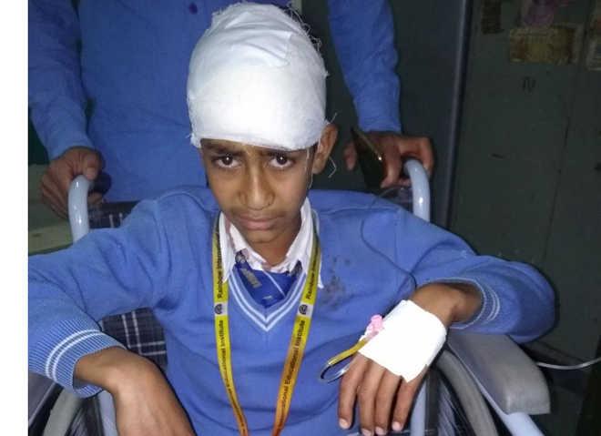 Stone-pelters attack school bus in J&K''s Shopian; student hurt