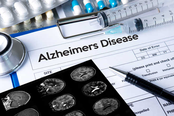 How our diet may reduce Alzheimer's risk