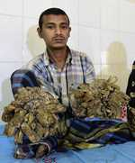 Bangladesh 'Tree Man' returns to hospital as condition worsens