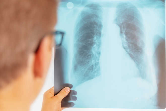 Drug-resistant tuberculosis reversed in lab