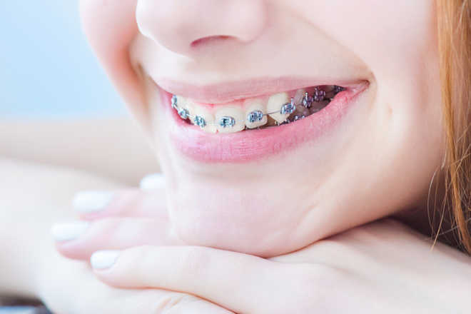 Braces won't guarantee happiness, self-confidence