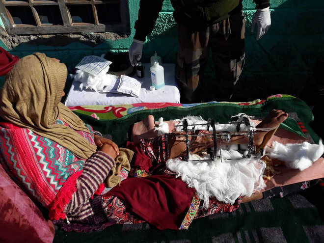 Maimed in shelling 2 years ago, no end to Poonch girl's agony